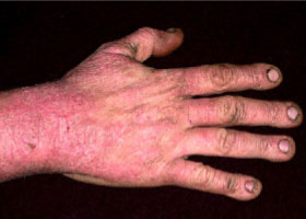 Of contact dermatitis occurs when a compound comes into direct contact