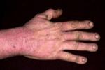 Tobacco Skin Irritations